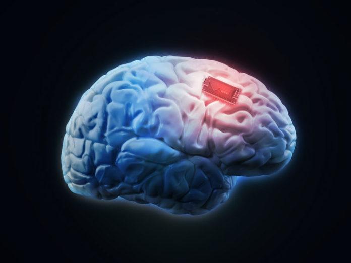 neuromodulation opioid treatment