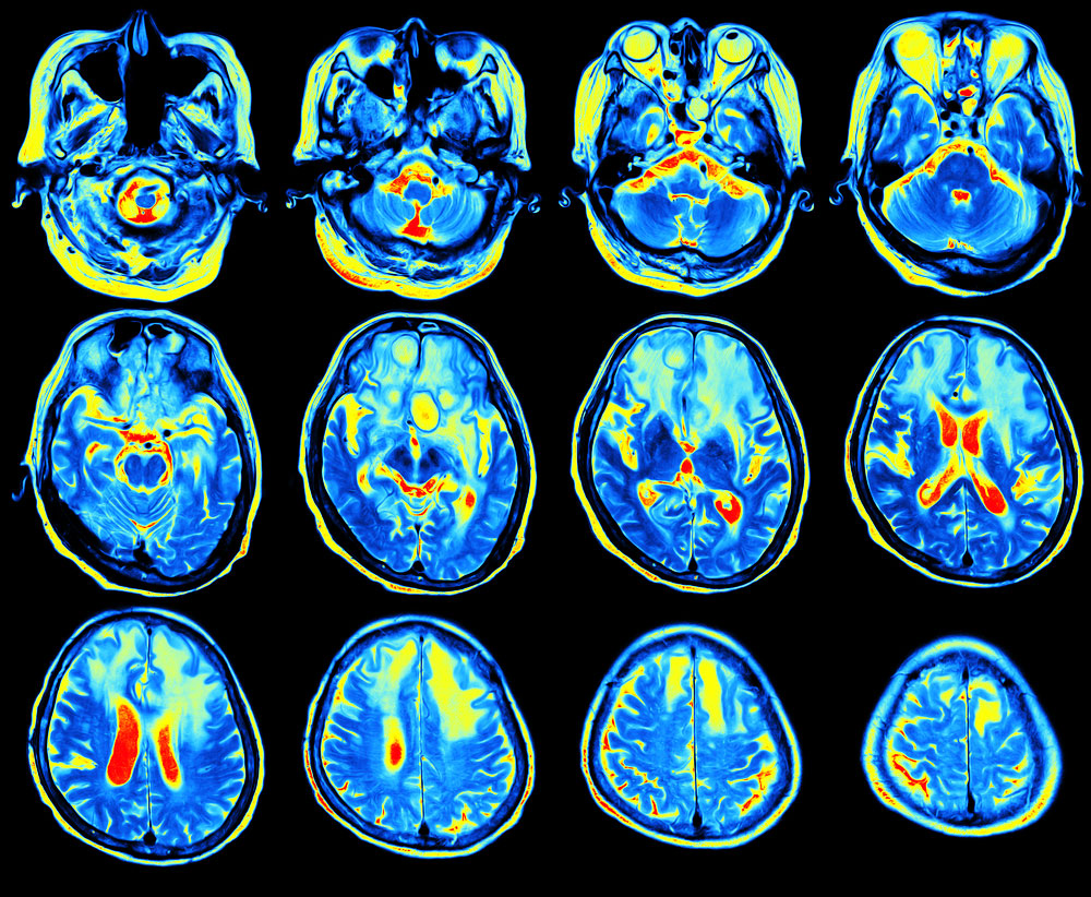 Functional MRI used to investigate new drugs for drug relapse prevention