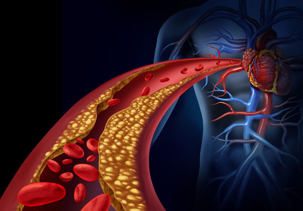 The link between cocaine addiction and vascular disease
