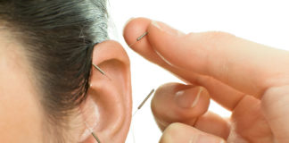 Addiction Recovery in Circleville Supplemented With Acupuncture Treatment