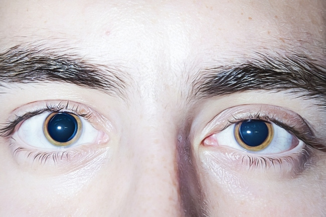 Coke Eyes